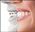 Invisalign Richmond Hill at dentistry in Oak Ridges by Dr. Herzog